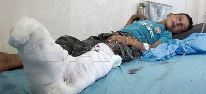 Two children injured in a mine blast left behind by Islamic State terrorists in Deir Ezzor